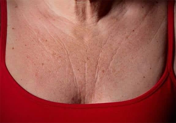 Éliminer les rides sur la poitrine rapidement