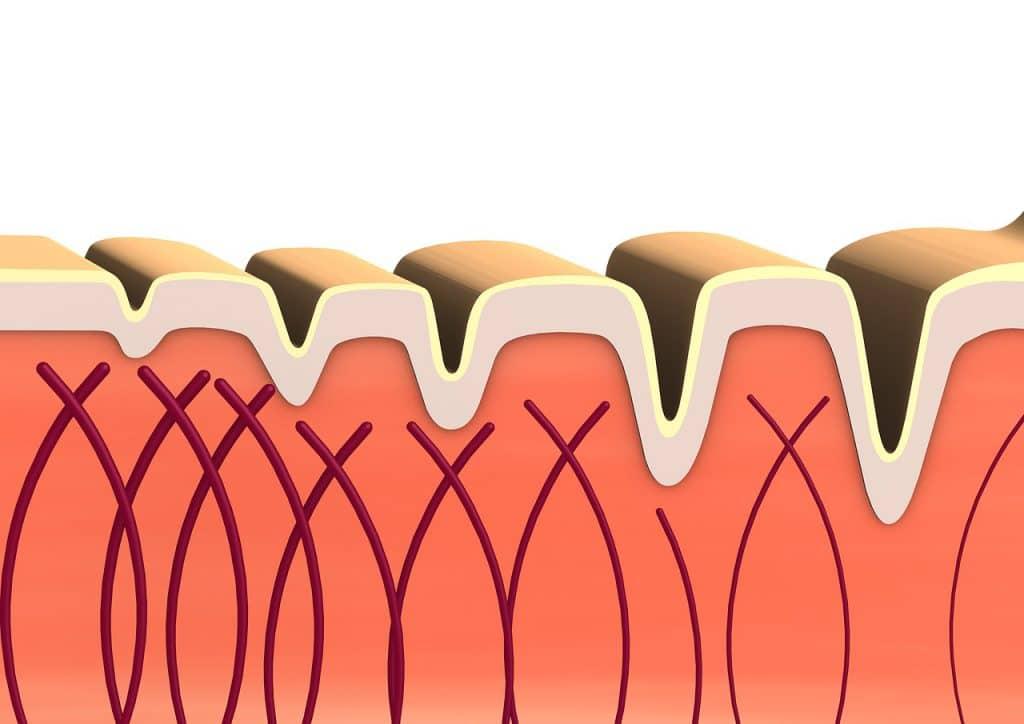 collagene poitrine